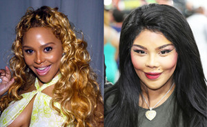 10x celebs plastic surgery gone bad!